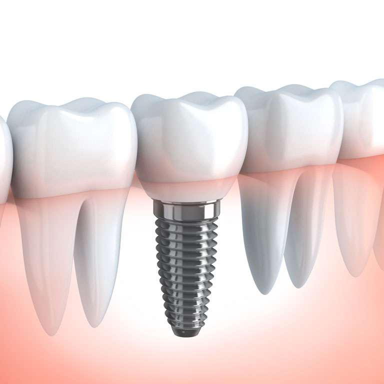 Implant Dentistry | Surgical